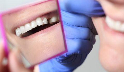 Patientin mit Zahnluecke im Spiegel beim Zahnarzt